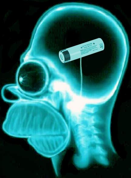 Gehirn_18650.jpg